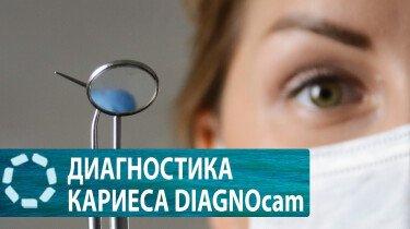 DIAGNOcam KaVo-диагностика кариеса